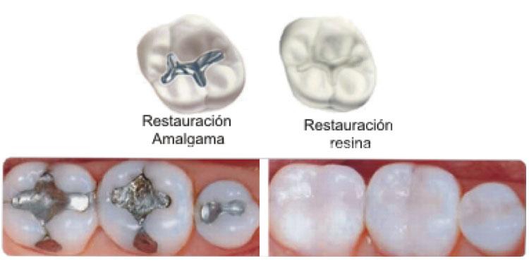 ¿Me tengo que quitar las amalgamas? | Clínica dental Mozas | Vitoria-Gasteiz