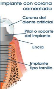 Cómo limpiar los implantes | Clínica dental Mozas | Vitoria-Gasteiz
