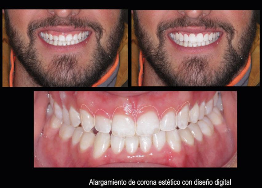 Alargamiento de corona estético | Clínica dental Mozas | Vitoria-Gasteiz