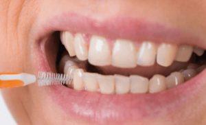 Enfermedades de las encías   Clínica dental Mozas   Vitoria-Gasteiz
