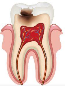 Qué es una caries | Clínica Dental Mozas | Vitoria-Gasteiz
