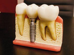 Pasos en la terapia de implantes - Clínica Dental Mozas